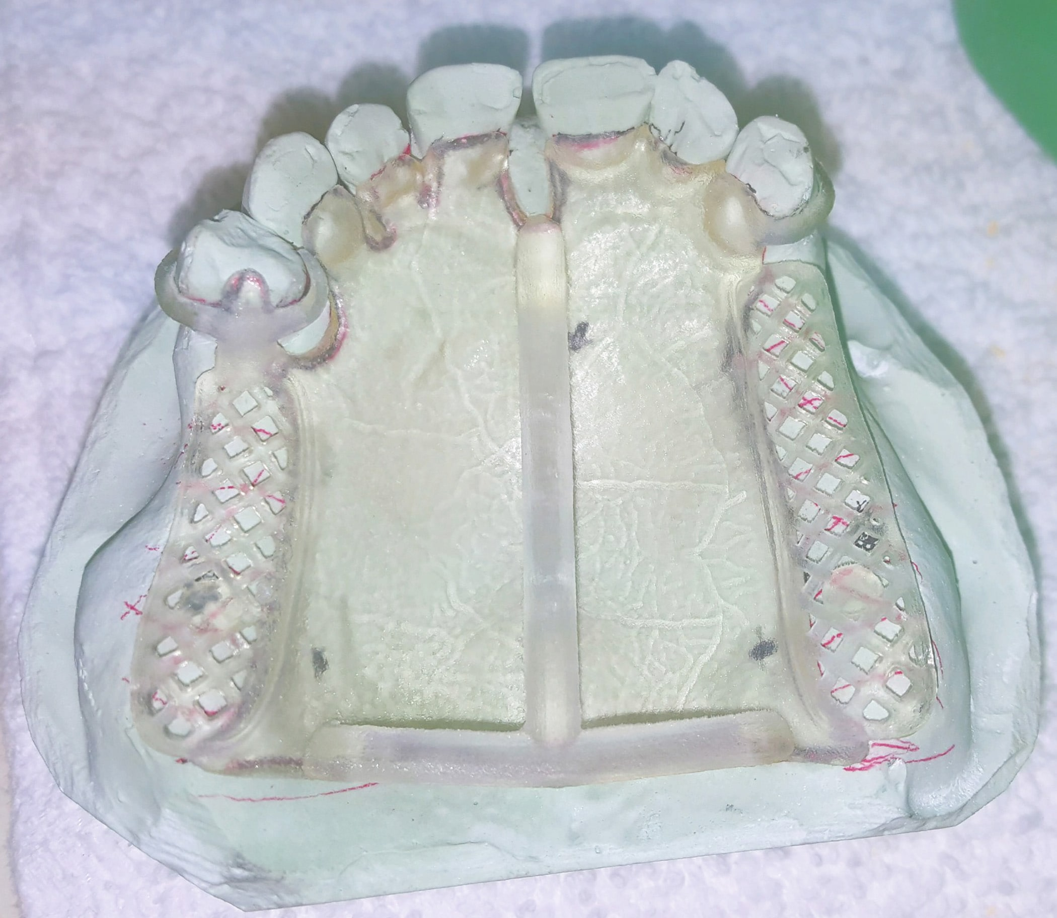 3d Printed partial framework on dental implant.