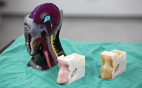 3D printed patient-speci c models for surgical planning.