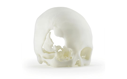 a 3D printed skull made from ABS-M30i material